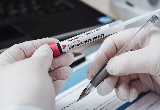 ats insubria test sierologici