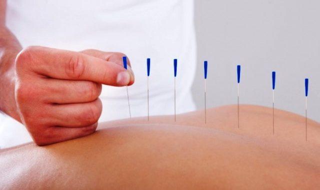agopuntura oncologia ospedale varese